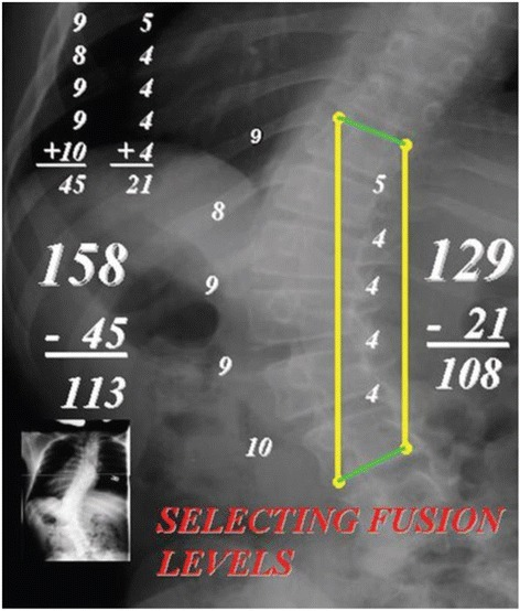 "Why use the ""stretch film"". The fundamental measurement made on the ""stretch film"" is the Cobb angle of the major curve while the spine is being stretched. The unique value of the ""stretch film"" is that is clearly identifies the area of major deformity, while the spinal column is compensated, over the pelvis, and the compensatory curves are well corrected. In the author's experience, this type film is much easier to interpret than bending films, which, by their nature, are NOT made with the patient's spine fully compensated and the compensatory curves minimized. Analyzing/measuring the ""stretch film"". From the Cobb angle on the ""stretch film,"" a measurement (in mm) is made from the top edge of the top vertebra to the bottom edge of the bottom end vertebra on the concave side of the curve. An identical measurement is made from the same vertebrae on the convex side of the curve. The thicknesses of the intervertebral discs were then measured on the concave and convex sides of the curve. The thicknesses of the discs were summed together on the concave and convex sides, and then subtracted from the longitudinal measurement made on the concave and convex sides of the curve. If the subtracted sums were within 5 to 10 mm of one another, then it was assumed that the reconstructed spine would approach ""straight"" after the discs were removed. If the difference in the subtracted measurements was more than 10 mm, this indicated the need to either add another disc to the preoperative plan or take off bony wedges from the endplates to get the spine straight."