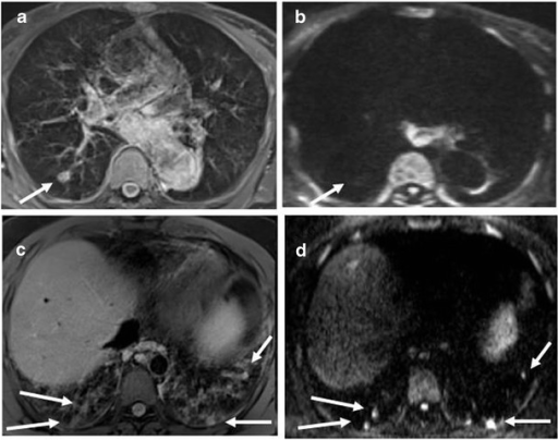Representative MRI with DWI sequences: nodules Nodules detected by MRI with DWI. MRI BLADE sequence detecting a nodule (white arrow) at the right lower lobe (a) without a DWI corresponding hotspot (b). MRI BLADE sequence detecting multiple and bilateral small nodules of the lower lobes (c) and their corresponding hotspots at DWI assessment (white arrow) (d)