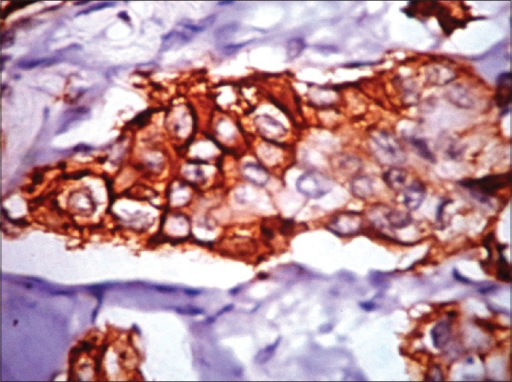 Epidermal growth factor receptor (membrane positivity) by immunohistochemistry (IHC) in triple negative breast carcinoma (IHC, ×40)