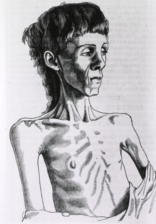 <p>Half-length, right pose view of an anorexic young woman. Neck and shoulder muscles, and skeletal features are evident beneath a thin veneer of skin.</p>