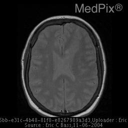 Heterotopic gray matter in the subependymal region of the lateral ventricles. (Supependymal gray matter heterotopia)