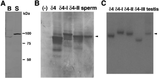 PLCδ4/ATL-II is expressed in sperm. (A) The molecular weight of PLCδ4 in brain (B) and sperm (S) was compared by Western blot analysis. 30 μg of each homogenate was subjected to SDS-PAGE. Western blot analysis was performed using an antibody against PLCδ4 raised in the laboratory. (B) The molecular weight of sperm PLCδ4 was compared with PLCδ4 and alternative splicing isoforms of PLCδ4. PLCδ4 (δ4) and splicing isoforms of PLCδ4, PLCδ4/ALT-I (δ4-I) and PLCδ4/ALT-II (δ4-II), were overexpressed in COS-7 cells. 40 μg of lysates was subjected to SDS-PAGE, and then Western blotting was performed. The arrowhead denotes that the sperm protein closely resembles in size the product from the PLCδ4/ALT-II splice variant. (C) The products of RT-PCR using testis RNA were compared in size with authentic products using PLCδ4 (491 bp), PLCδ4/ALT-I (δ4-I; 587 bp), PLCδ4/ALT-II (δ4-II; 533 bp), and PLCδ4/ALT-III (δ4-III; 398 bp) plasmids. The arrowhead denotes that the major testis PCR product coincides in size with that of the PLCδ4/ALT-II splice variant.