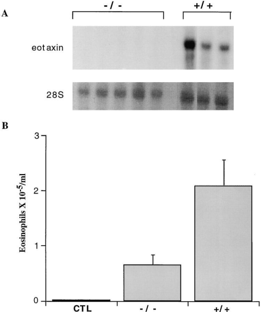 Allergen induced airway eosinophilia. Mice were sensitized  systemically to OVA and underwent inhaled OVA challenge. At 18 h after allergen challenge, the lungs were assessed for eotaxin mRNA expression (A) and the eosinophil count in the bronchoalveolar fluid (B).  Northern blot analysis of total RNA evaluating eotaxin expression in eotaxin  (−/−) and wild-type mice (+/+). The hybridization of a 28S  rRNA cDNA probe is also shown. Each lane represents a different  mouse. In (B), the number of eosinophils in the lung fluid is shown as  mean ± SEM for wild-type (n = 10), eotaxin  (n = 13), or control  unsensitized mice (n = 3); P = 0.005 between +/+ and −/−.