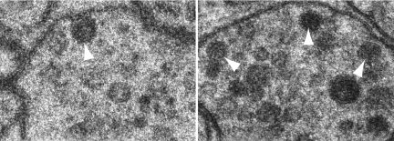 Dense core vesicles dock at the membrane (left) or hang back (right).