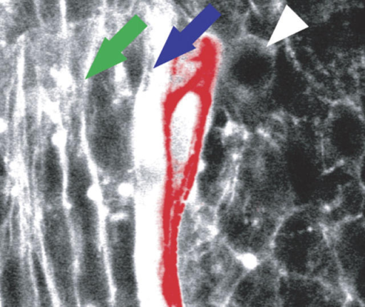 Ovoid fast muscle cells (white arrow) stretch out (green arrow) after a slow muscle cell (red) moves laterally (right) over them.AMACHER/ELSEVIER