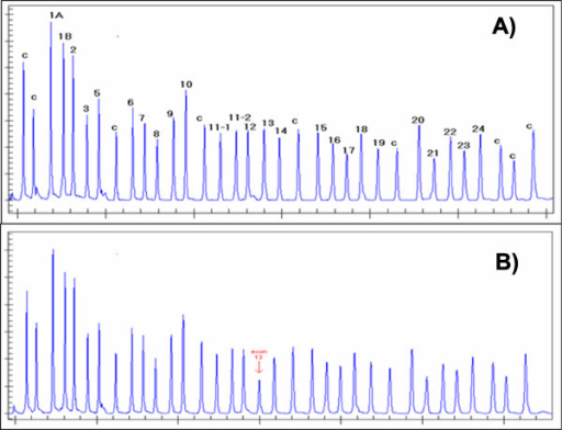 Example of a deletion in an MLPA assay. Panels A and B show pherograms ...