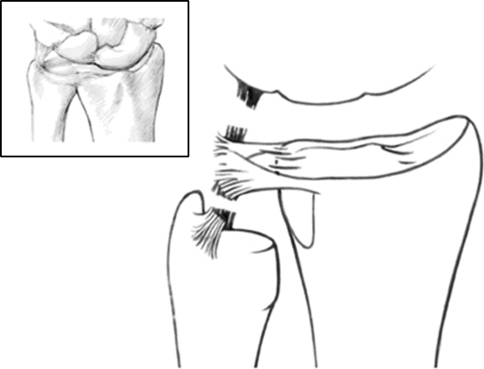 The relationship of the TFCC to the ulnar carpal ligaments