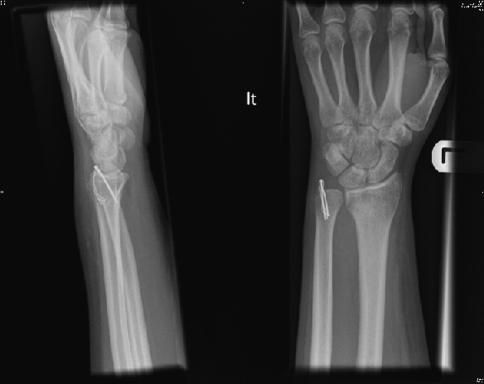 Tension band wire fixation of an ulnar styloid fracture