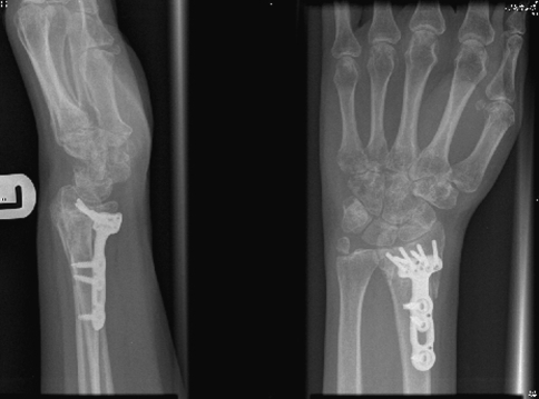 Unstable DRU joint after an ulnar styloid base fracture nonunion