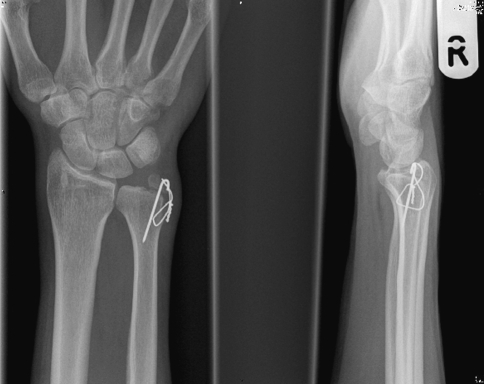 Reattachment of a large ulnar styloid fracture nonunion with associated DRU joint instability
