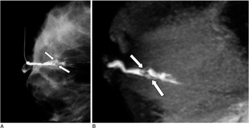 33-year-old woman with bloody discharge.A, B. Both conventional galactography (A) and MR contrast galactography (B) reveal filling defects (arrows) and pathology results were reported as intraductal papillomas.