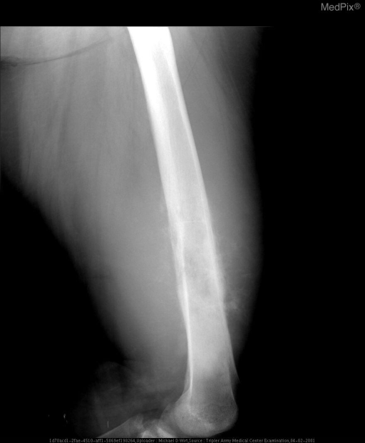 A lateral view of the left femur demonstrates an aggressive lesion of the distal left femoral dimetaphysis with both intramedullary and cortical involvement. The lesion appears permeative with starburst periosteal reaction.