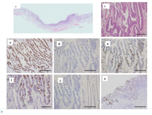 A representative example of intestinal intramucosal differentiated-type cancer of the gastric phenotype. a. Low power view of tumor tissue. b. High power view of tumor tissue. c. p53 overexpression was seen. d. p21 was reduced. e. p27 was overexpressed. f. Overexpression of cyclin A. g. Low expression of cyclin D1. h. Only Muc2 was expressed in this tumor, suggesting intestinal phenotype.