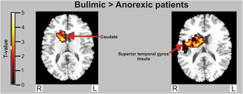 Between-group map activation showing food > non-food activation in women with bulimia nervosa versus anorexia nervosa.T-value bar illustrates t-value scores represented by cluster on the brain map.