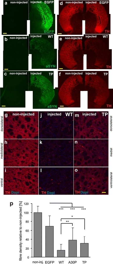 Loss of TH-positive innervation in the striatum after expression of a fibrillar αSynuclein variant (WT) or the prefibrillar variant TP. Representative images illustrating the axonal fiber innervation in the striatum 14 weeks after AAV-mediated gene transfer into the SN. Overview of coronal sections showing transgene expression of EGFP (a), WT αSynuclein (b), and TP αSynuclein (c). Nigrostriatal fiber terminals in the striatum were filled with the transgenic protein. Immunohistochemical staining for TH (d–f) revealed that in contrast to the AAV-EGFP-injected animals (d), the expression of αSynuclein led to the appearance of degenerative changes and a loss of striatal fibers, which was more pronounced for WT (e). Scale bar 500 μm. g–o Higher magnification images covering the dorsal, medial and ventral area of a representative striatal section of an intact non-transduced control side (g–i), WT-transduced (j–l), and TP-transduced (m–o) brain. TH-immunostained sections showing the extent of loss of striatal innervation. Remaining fibers in the WT αSynuclein-treated animals were sparse. Scale bar 100 μm. p Quantification of fiber density revealed a clear reduction in TH-positive striatal innervation in the αSynuclein transduced animals at 14 weeks after injection (significant difference from the EGFP-transduced control group at p < 0.001). The difference between the WT and TP variant was also significant (p = 0.048), whereas the difference between A30P and TP was not