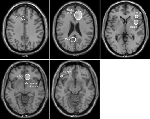 Regions of interest activated or deactivated during the comparison of rejection task conditions across studies. The MNI, montreal neurological institute coordinates from each study were averaged (see Table 1). The slices are in the axial view and the size of the ring represents the variability around the y-axis. dACC, dorsal anterior cingulate cortex; PFC, prefrontal cortex; L VLPFC, left ventrolateral PFX; PCC, posterior cingulate cortex; R VLPFC, right ventrolateral PFC; vACC, ventral anterior cingulate cortex.