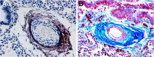 Identification of pulmonary perivascular fibroblasts and collagen. A) identification of fibroblastic cells around a lung vessel by FSP-1 immunohistochemistry (brown reaction product). B) Perivascular blue collagen fibers highlighted by histochemistry – SIDS case, 2 month-old. A) FSP-1 immunostain; magnification: 20x - B) AZAN stain; magnification 20×.
