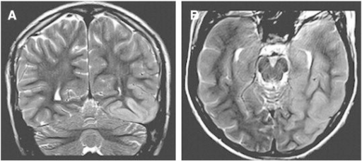 MRI of brain. There is cortical thickening with mildly associated increased T2 signal within the left posterior temporal and mesotemporal lobe with involvement of the hippocampal and parahippocampal gyri. A. Coronal T2-weighted image; B. axial T2-weighted image.