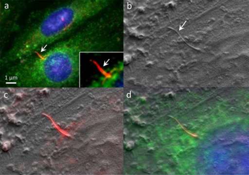 (a) An MEF primary cilium (arrows, inset) labeled in IFM for localization of acetylated α-tubulin (red), 4′,6-diamidino-2-phenylindole (blue), and clathrin (green). (b) SEM and (c and d) CLEM of the same specimen. At the base of the cilium, a ciliary pocket is surrounded by clathrin-coated vesicles. (From J. Kolstrup, Thesis, University of Copenhagen [2012], with permission.)