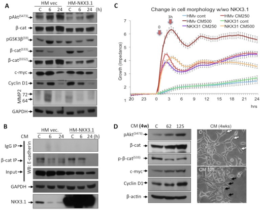 NKX3.1 suppressed the morphological changes and growth rate of the LNCaP cells, when the cells were treated with CM.A. Significant decreases in p-GSK3β(S9) and p-β-catenin(S552) and an increase in p-β-catenin(S33) phosphorylation were observed after NKX3.1 overexpression. Consistently, c-myc, cyclin D1, and MMP2 expression levels were marginally decreased. B. Although, E-cadherin level is marginally decreased, NKX3.1 expression restored the β-catenin-E-cadherin interaction, which are disrupted by CM (500 pg/ml TNFα for 6 or 24 h) treatment in LNCaP cells. HM-vec and HM-NKX3.1 represent the control and the HM-NKX3.1 expression vectors, respectively. C. LNCaP cells were transfected with the HM control vector or the HM-NKX3.1 for 24 h and the cells were split into E-plates to analyze surface coverage before and after the CM treatments (CM including 250 or 500 pg/ml TNFα for 24 h.). Xcelligence real-time platform was used. The time of 0 indicates when the application of the CM was performed. D. The upregulation of β-catenin is associated with an increase in expression of c-myc and cyclin D1 in chronic CM treatments (62 or 125 pg/ml TNFα for 4 weeks). Consistently, this observation correlates with an increase in p-Akt(S473) level and a decrease in p-β-catenin(S33) in 4 wks of CM treatment. Black arrows indicate that the cellular boundaries of enlarged cells in comparison to control cells (white arrows). Two independent experiments were performed, and the blots were repeated at least three times.