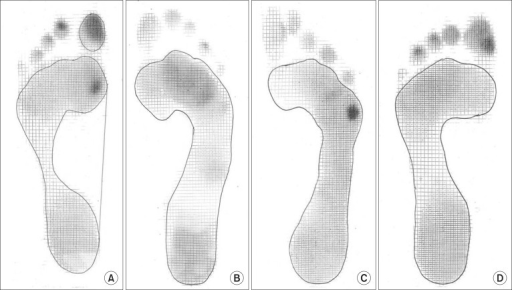 Medial (A), middle (B), lateral (C), and even (D) dynamic forefoot pressure concentration.