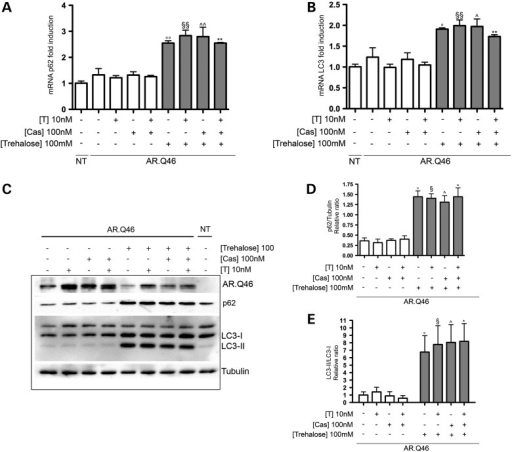 The autophagy activation is mediated by trehalose and not influenced by Bicalutamide. (A and B) Real-time PCR on SQSTM1/p62 (A) and on LC3 (B) mRNA expression levels on NSC34 cells expressing AR.Q46, in the absence of (ethanol as a vehicle control) or in the presence of 10 nm testosterone (T) and/or 100 nm Bicalutamide (Cas) and/or 100 mm trehalose for 48 h (°°P < 0.01 versus EtOH; §§P < 0.01 versus +T; ^^P < 0.01 versus +Cas; **P < 0.01 versus +T/+Cas). Not transfected cells (NT) show that AR.Q46 transfection does not alter SQSTM1/p62 and LC3 mRNA expression levels. (C) Western blot analysis on NSC34 cells expressing AR.Q46 treated with ethanol (EtOH) as a vehicle control, 10 nm testosterone (T) and/or 100 nm Bicalutamide (Cas) and/or 100 mm trehalose for 48 h. Two well-known markers of the autophagic pathway (SQSTM1/p62 and LC3-II) were used to show that the activation of autophagy is mediated by trehalose and not influenced by Bicalutamide. NT demonstrates that AR.Q46 transfection does not influence SQSTM1/p62 and LC3-II protein expression levels. Alpha-tubulin was used to normalize protein loading. (D and E) The two histograms, relative to western blot analysis in (C), represent a quantitative evaluation of SQSTM1/p62 protein level normalized on alpha-tubulin (D) (°P < 0.05 versus EtOH; §P < 0.05 versus +T; ^P < 0.05 versus +Cas; *P < 0.05 versus +T/+Cas) and a quantitative evaluation of LC3-II/LC3-I ratio protein level (E) (°P < 0.05 versus EtOH; §P < 0.05 versus +T; ^P < 0.05 versus +Cas; *P < 0.05 versus +T/+Cas), carried out by densitometric scanning of the blots.