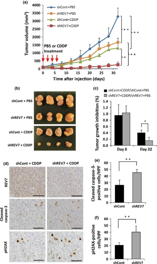 Suppression of REV7 enhances cisplatin (CDDP) sensitivity in vivo. (a) Growth of inoculated tumors in nude mice with and without systemic CDDP treatment. REV7-knockdown (shREV7) or control (shCont) ovarian clear cell carcinoma TOV-21G cells (1 × 107) were used in this analysis. The means ± SDs of tumor volume are shown. *P < 0.05; **P < 0.01. (b) Macroscopic images of transplanted tumors excised at day 32. (c) Reduction of tumor volume by CDDP treatment. Tumor volumes of the CDDP-treated group relative to the mean tumor volume of the PBS-treated group were calculated, and the means ± SDs of relative tumor volumes are shown. *P < 0.05. (d) Immunohistochemical analysis of excised tumors for REV7, cleaved caspase-3, and phospho-H2AX. Excised tumor tissues at day 32 were immunohistochemically stained with anti-REV7 (upper panels), anti-cleaved caspase-3 (middle panels), and anti-phospho-H2AX (lower panels) antibodies. Scale bar = 50 μm. (e, f) Quantitative assessment of cleaved caspase-3-positive cells (e) and phospho-H2AX-positive cells (f) in shREV7 and shCont tumors. Cells were counted under high power fields (HPF). The data obtained from five separate fields are shown as means ± SDs. **P < 0.01.