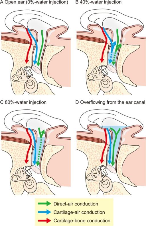 "Sound transmission pathways in cartilage conduction.Part A shows three possible transmission pathways when the transducer is placed on the cavity of the concha [8, 9]. In the first pathway, vibrations of the transducer directly produces air-borne sound, some of which reaches the ear canal and is transmitted to the cochlea via the conventional pathway in air conduction (AC). This pathway is termed ""Direct-AC"". In the second pathway, vibrations of the aural cartilage and soft tissue are transmitted to the cartilaginous portion. These vibrations induce an acoustic signal in the canal which is transmitted by AC to the eardrum. This pathway is termed ""Cartilage-AC"". In the third pathway, vibrations of the aural cartilage and soft tissue are transmitted via the skull. This pathway is termed ""Cartilage-bone conduction"". Part B, C, and D show the change in the sound transmission when the water is injected into the ear canal. When 40% of the ear canal is filled with water, the surface of the water probably levels at the bony potion. In this condition, the Direct-AC and Cartilage-AC are interrupted (Part B). When the water is additionally injected to 80% of the ear canal, the surface of the water probably reaches the cartilaginous portion. The vibration of the cartilaginous portion is efficiently transmitted to the eardrum, which is mediated by the injected water (Part C). Consequently, if the vibration of the cartilaginous portion contributes to the sound transmission, the threshold will first be elevated by the 40%-water injection, and be improved by the 80%-water injection. When the transducer touches the water (overflowing-water injection condition), the vibration is directly transmitted to the water (Part D)."