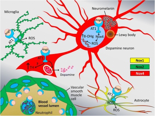 A cell type-dependent model of interactions between AT1 and Nox1, 2, and 4 in the human substantia nigra. The AT1 is broadly expressed in the CNS in astrocytes, microglia, and is particularly abundant in neurons, including dopamine neurons where, as we demonstrate here, the AT1 is found not only on the plasma membrane, but also intracellularly associated with the membranes of the endoplasmic reticulum, other cytoplasmic structures, nuclear membrane, and AT1 is found inside the nuclei themselves. The AT1 is also expressed by the vascular smooth muscle cells and by neutrophils and macrophages, raising the possibility that brain RAS activities can be influenced by the entry of peripheral monocyte-derived cells that are rich in AT1 and Nox2. The nuclear AT1, which we demonstrate here to be co-localized with nuclear Nox4, an event which frequency increases with disease progression, induces intra-nuclear production of reactive oxygen species (ROS, superoxide and hydrogen peroxide) leading to an increase in nucleic acid oxidation determined by increased levels of oxidized 8-OH guanosine (8-OHg). This complex landscape of AT1-Nox interactions, when balanced serves to maintain tissue homeostasis and normal levels of dopamine, but in chronic disease such as Parkinson's the AngII/AT1/Nox4 axis might become overactive and lead to deleterious nucleic acid lesions that destabilize DNA and impair the transcriptional machinery in the affected neurons. Taken together, our findings suggest need for additional studies of these interactions toward designing therapies that restore healthy balance between the injurious and physiological functions of AT1 and Nox4 and by doing so moderate progression or prevent onset of neurodegenerative diseases. Legend: neurons – Nox4 (red), microglia – Nox2 (green), and astrocytes – mixture of Nox1 (yellow), Nox2 (green), and Nox4 (red).