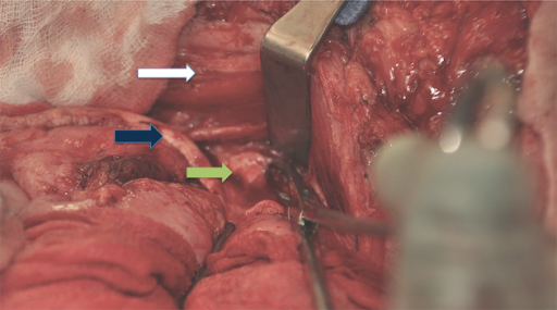 Posterior component separation: in this figure the right angle retractor is placed in the internal oblique aponeurosis while it is divided (green arrow). The blue arrow represents the posterior rectus sheet together with the transverse abdominis muscle. The white arrow indicates the rectus muscle seen inferiorly.