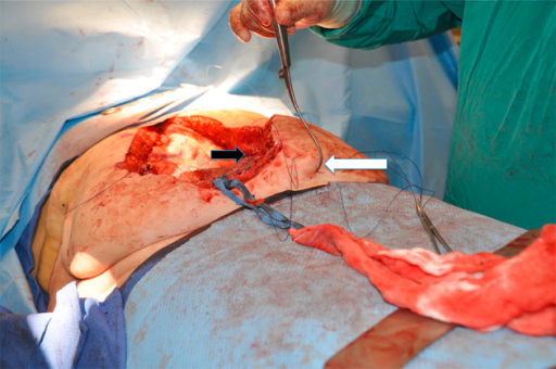 Mesh fixation: the fixation of the mesh transfacially is accomplished by inserting the Reverdin needle (white arrow) percutaneously through the skin, subcutaneous tissue and anterior fascia and picking the stitches previously placed in the mesh in a U fashion (black arrow).