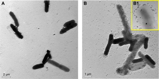 Transmission electron micrographs of Escherichia coli before and after treatment with GlcN-AuNPs.Notes: (A) Bacteria before treatment with GlcN-AuNPs showing clear and well structured morphology. (B) Bacteria after treatment with GlcN-AuNPs showing damaged cell membranes and ruptured structures. (B1) Inset image shows nanoparticles attached and surrounding E. coli.Abbreviations: AuNPs, gold nanoparticles; GlcN-AuNPs, glucosamine-functionalized gold nanoparticles.