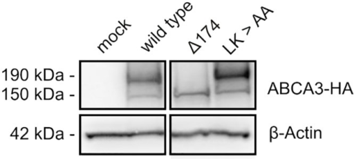 Mutation of potential Cathepsin cleavage sites.Amino acids forming potential cleavage sites were replaced by alanine residues using site directed mutagenesis. Lane 1: cells transfected with empty vector; lane 2: wild type ABCA3; lane 3: deletion of the first 174 amino acids of ABCA3; lane 4: 173LK174 > AA.