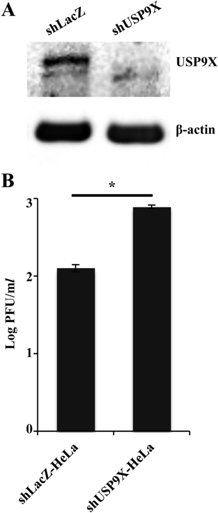 Effect of USP9X on HSV-1 replication. (A) HeLa cells expressing silencing shRNAagainst LacZ and USP9X were analyzed by immunoblotting with antibodies against USP9Xand β-actin. (B) These cells were infected with wild-type HSV-1 (F) at MOI 0.01. Totalvirus preparations from the media and infected cells were obtained 48 hr postinfectionand assayed on U-2 OS cells. Data are mean ± standard error from three independentexperiments. *P<0.05 by two-tailed Student'st-test.