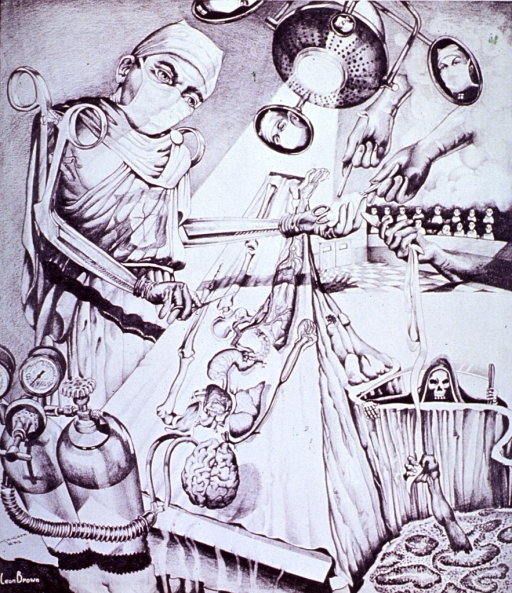 <p>Surrealistic representation of the surgeon in the operating room showing the patient as the surgeon &quot;sees&quot; him.</p>