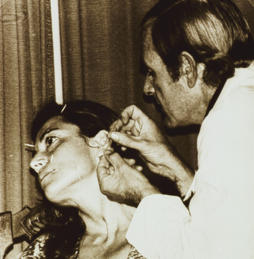 <p>A physician is inserting needles into a woman's ear; other needles have been placed at various points on her face.</p>