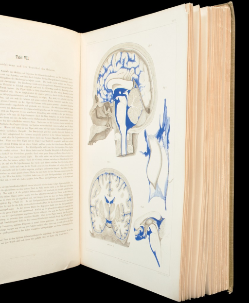 <p>Four views shown on one page, of injections of the subarachnoid spaces and ventricles of the human brain. Studien, vol. 1, pl. 7, figs. 1-4.</p>