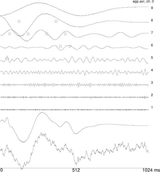 Average auditory evoked potential, it's decomposition in wavelet subbands and reconstruction from 9 wavelet coefficients, statistically differentiating EP from on-going EEG ([5]).
