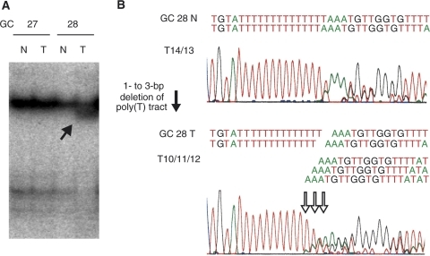 Representative example of an ST7 frameshift mutation. (A) SSCP analysis of the intron 8–exon 9 junction of the ST7 gene. The solid arrow indicates a shifted band in the tumour sample. T: tumour samples; N: corresponding normal tissue samples. (B) Sequence analysis. The open arrow indicates deletions in the polypyrimidine tract within the splice-acceptor site of intron 8 (−3 nucleotides from exon 9). The number of nucleotides deleted ranged from one to three.