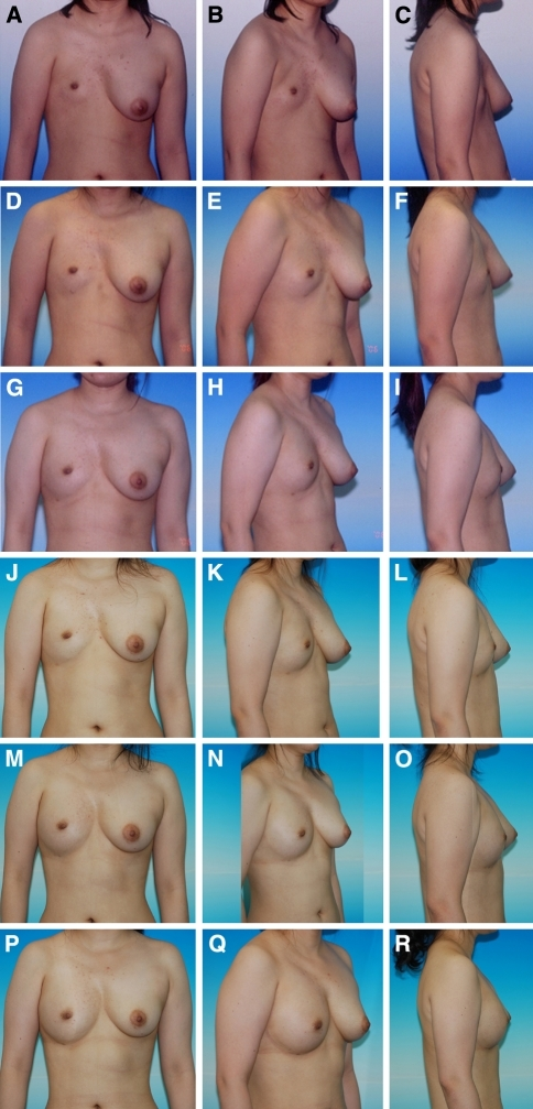 Serial photos showing minimal interval change between 6 months and 1 year after the second surgery. a–c View 1 February 2005 before surgery. d–f View 3 January 2006 1 year after the first surgery. g–i View 24 July 2006 6 months after the second surgery. j–l View 26 January 2007 1 year after the second surgery. m–o View 9 January 2008 1 year after the third surgery. p–r View 24 May 2008 4 months after the fourth surgery