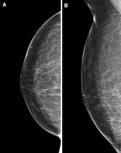 Mammography 3½ years after the first surgery (4 months after the fourth surgery). a CC view. b MLO view. No significant calcification is seen