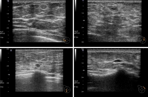 Sonography 3½ after the first surgery (4 months after the fourth surgery). Small fluid-filled cysts are seen