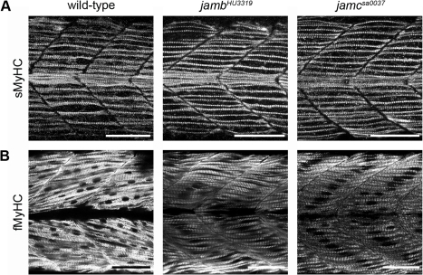 fast and slow twitch fibres coloring pages | pbio-1001216-g003:Jamb and Jamc Are Essential for ...