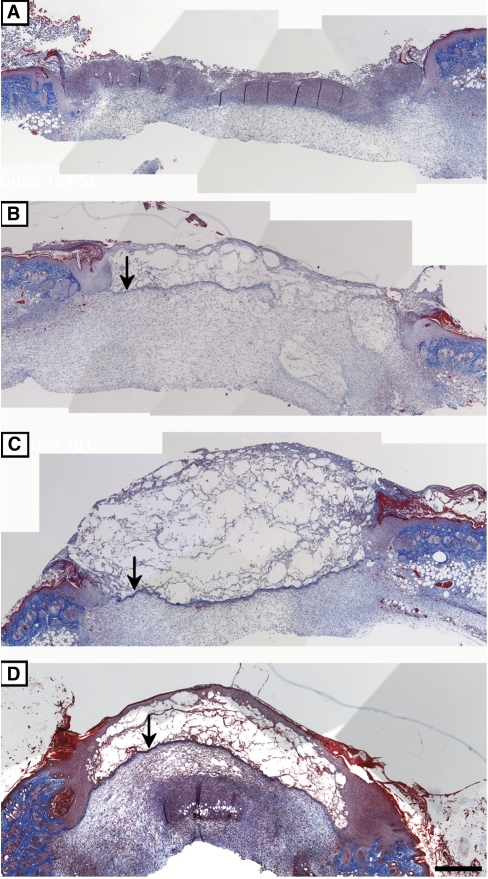 Effects of the peptides on collagen and basement membrane deposition during wound healing.Trichrome was used to stain wounds excised at day 5 post-injury. All the animals were injected with CY prior to injury. Representative sections of wounds treated with CMC alone (A), UN3 (B), comb1 (C) or a combination of UN3 and comb1 (D). Images were taken at 5× objective lens and merged using Adobe Photoshop CS2. Arrows indicate newly deposited basement membrane. Scale bar 200 µm.