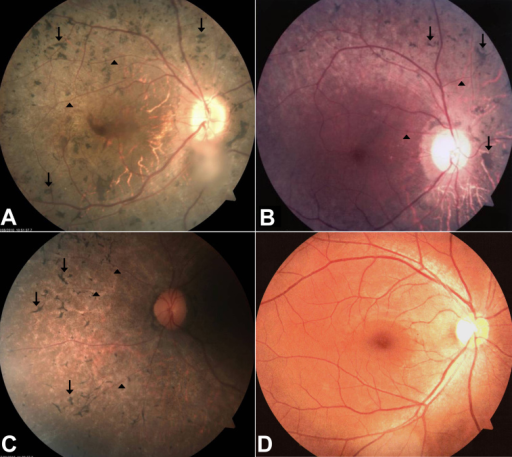 Fundus photographs of affected individuals. Fundus photographs of the right eye from affected individual II:4 A: affected individual II:6 B: affected individual II:7 C: and the unaffected father I:1 D: who carries the mutation heterozygously. The ages at the time of investigation of individuals II:4, II:6, and II:7 were 36, 28, and 26, respectively. Fundus examination of the affected individuals revealed typical features of retinitis pigmentosa, bone spicule-like pigmentations were found in the mid periphery of retina (indicated with arrows), and retinal vessels were attenuated (arrowheads).