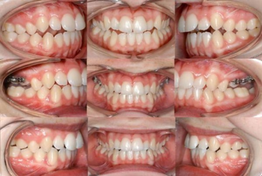 Treatment stages for case 1: initial situation (upper row), over-correction (middle row) and four months after intrusion appliance removal (lower row).