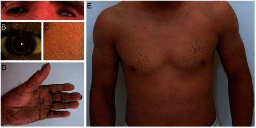 Clinical features of patients.(A) Patient D1 with erythema of the face and eye symptoms; (B) Patient S with isolated bilateral microspherophakia without ectopia or hypertonia; (C) Skin of the upper leg of patient S showing ichthyosiform erythroderma with large, white scales; (D) Palmoplantar hyperlinearity, hyperkeratosis, and brachydactyly in patient D1; (E) Upper part of the body in patient D2; large brownish scales on the limbs and trunk.