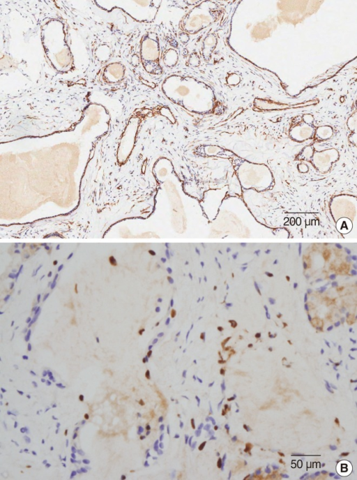 (A) Immunohistochemical staining for smooth muscle actin demonstrated myoepithelial cells surrounding ductal epithelium (H&E, ×100). (B) Focal ductal epithelial cells showed immunoreactivity for estrogen receptor (H&E, ×400).