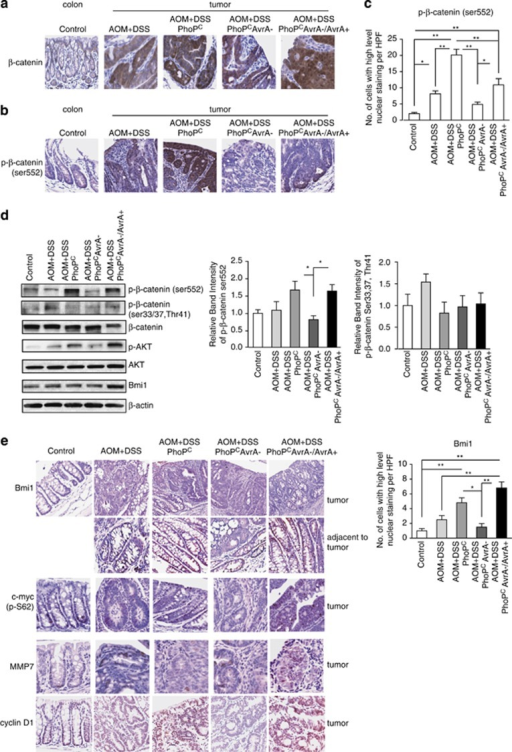 AvrA regulates β-catenin activation as assessed by phospho (Ser552) β-catenin in AOM/DSS-induced tumors. (a) β-Catenin localization in control mucosa and colonic tumors. (b) P-β-catenin Ser552 localization in control mucosa and colonic tumors. (c) Quantitation of nuclear P-β-catenin Ser552 in control mucosa and colonic tumors. Data are means±s.d. of n=3 control mice or AOM/DSS tumors in each group. *P<0.05, **P<0.01 (d) Expression levels of p-β-catenin, total β-catenin and Akt and P-Akt as assessed by western blotting in control and AOM/DSS-induced tumors. Shown are control mucosa and tumors representative of three mice in each group. (e) Immunostaining of p-Myc, MMP-7, Cyclin D1 and Bmi1 in control colons and AOM/DSS-induced tumors (left panel). Quantitative imaging of nuclear Bmi1 in control mucosa and mucosa adjacent to tumors (right panel). Data are means±s.d. of n=3 control mice or AOM/DSS mice in each group. *P<0.05, **P<0.01.