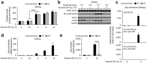 Acss2 regulates hypoxia-induced renal Epo expression in